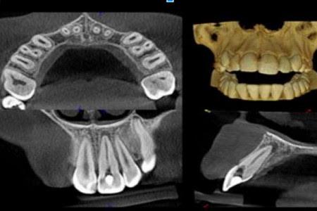 Radiologia Odontoiatrica